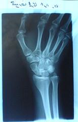 دست راستم که استخوان اسکانفوئیدش ترک برداشته بود